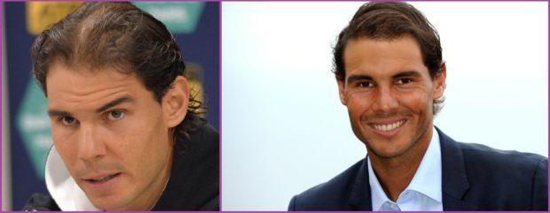 Rafa Nadal, un changement spectaculaire après avoir subi une greffe de cheveux - Ce que vous devez savoir sur la greffe de cheveux pour les hommes