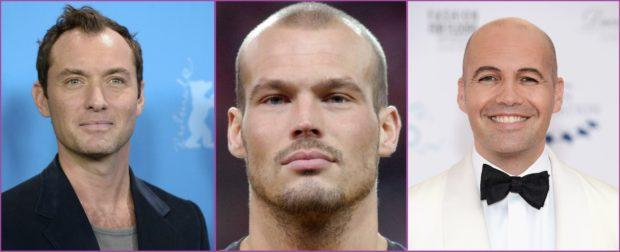 Les hommes aux cheveux rasés et à la ligne frontale fuyante sont séduisants - Signes que vous devez vous raser les cheveux courts